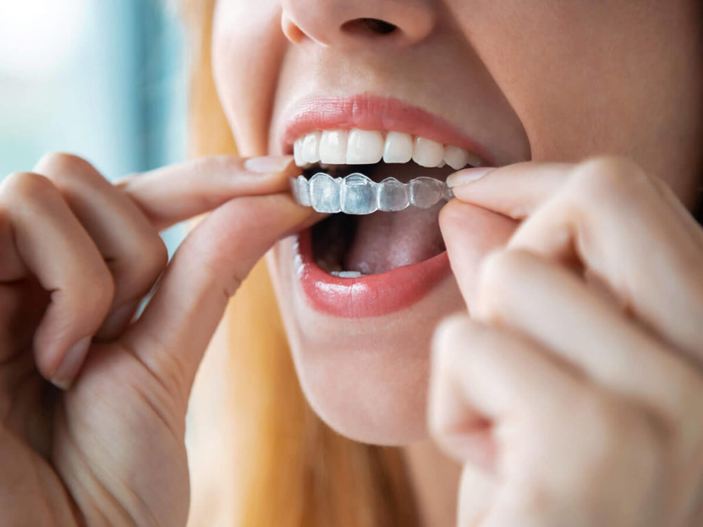 woman putting in invisalign aligner in mouth