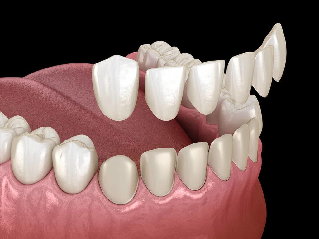 illustration of dental veneers being placed on teeth