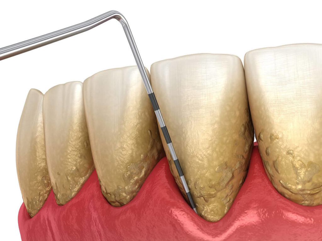 illustration of teeth with periodontal disease
